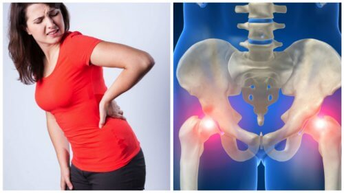 A woman with recurring hip pain.