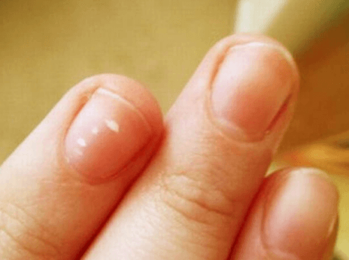 fingernails with white spots