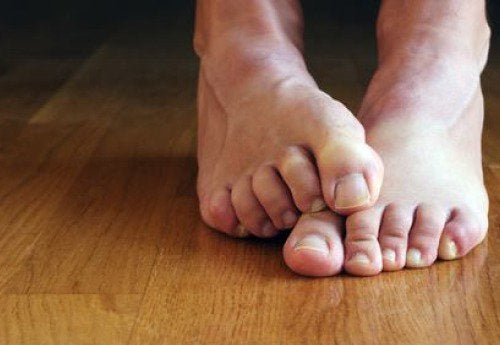 6 Natural Remedies for Athlete's Foot
