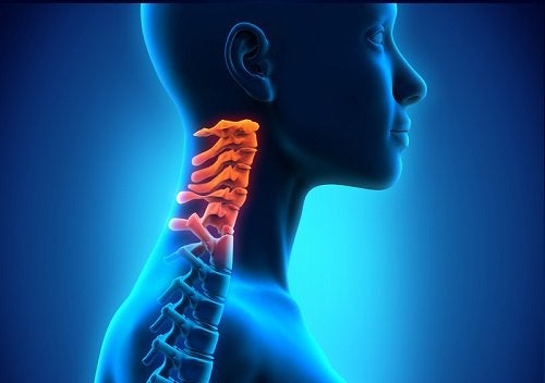 Spondylosis affects the vertebrae of the neck.