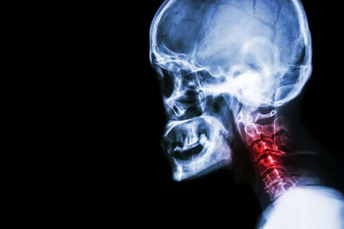 The Symptoms of Cervical Spondylosis and Natural Treatments