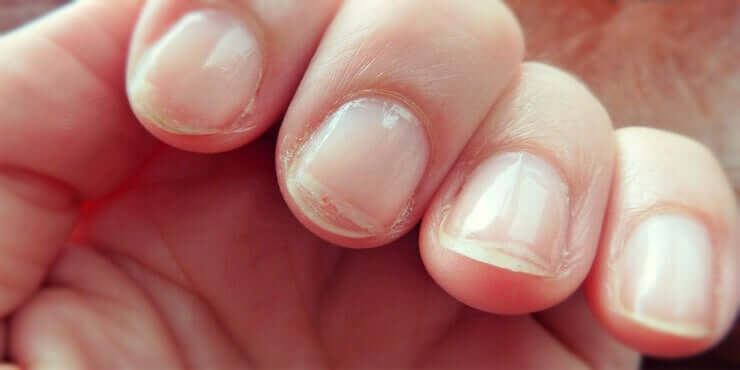 Dry and flaky fingernails.