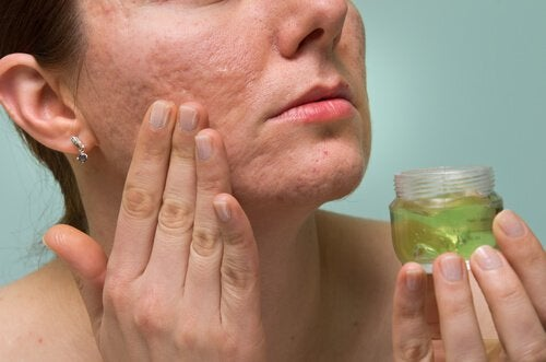 Woman rubbing aloe gel onto face