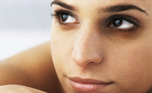 Woman with dark circles under her eyes