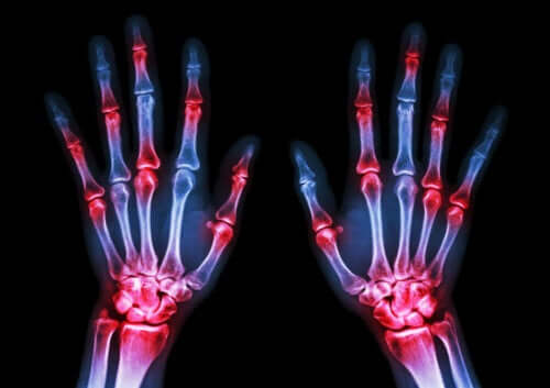Five Symptoms of Rheumatoid Arthritis