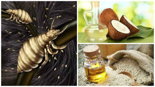 Fight Lice Successfully with These 5 Home Remedies