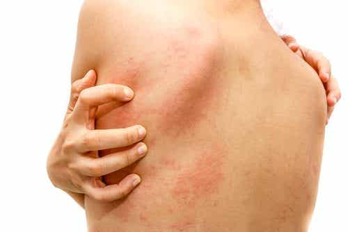 Natural Home Remedies to Treat Hives