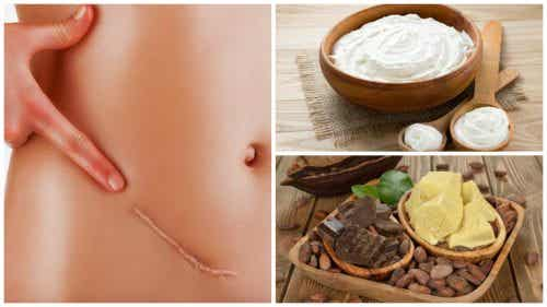 Seven Natural Remedies for Reducing Scars