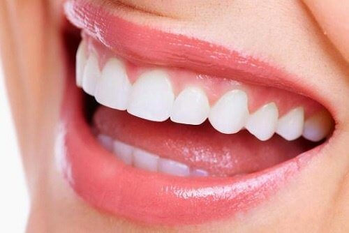 A lady with very white teeth.