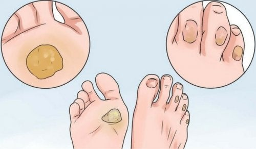 10 Remedies to Say Goodbye to Calluses and Blisters