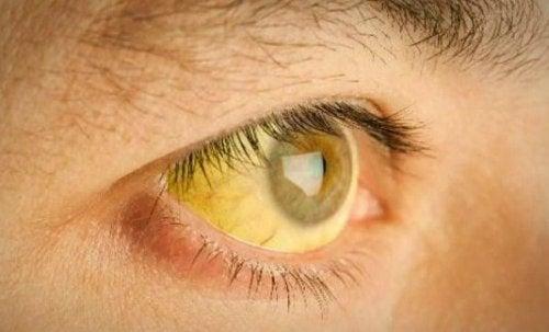 Jaundice yellow eyes need to detox