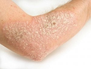 Help Your Psoriasis with These 6 Easy Natural Remedies