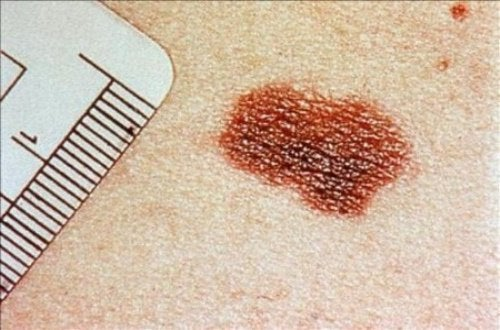 Signs of Skin Cancer You Shouldn't Ignore