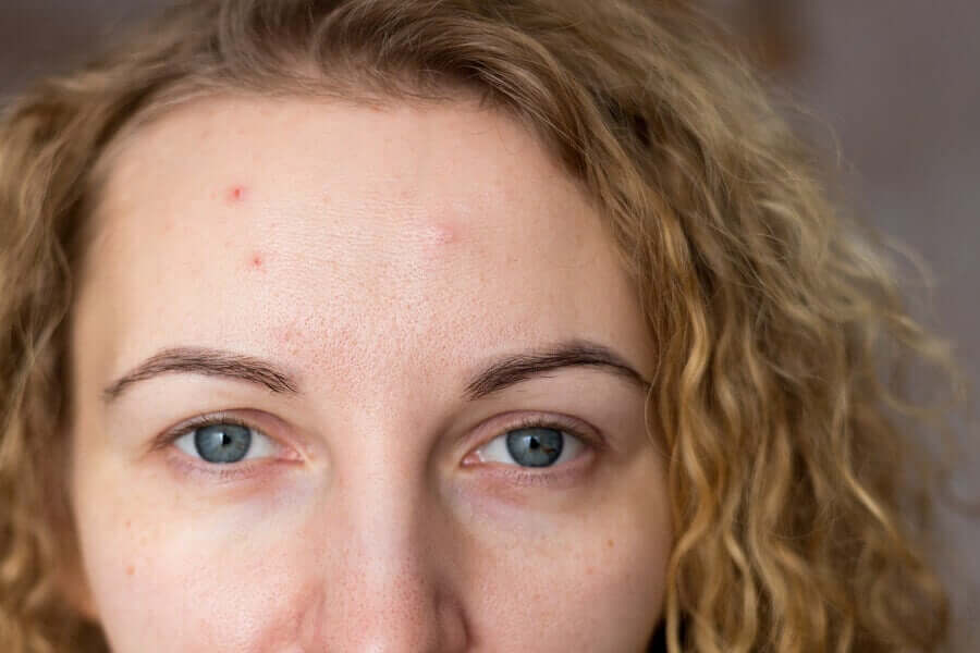 A woman with acne.