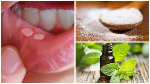 7 Natural Remedies for Mouth Sores
