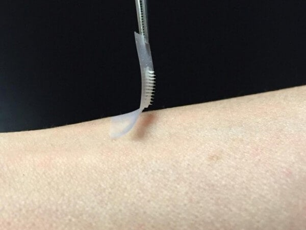 Microneedle patch for diabetes