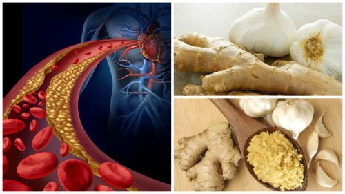 Fight High Blood Pressure and High Cholesterol with this Homemade Ginger and Garlic Remedy