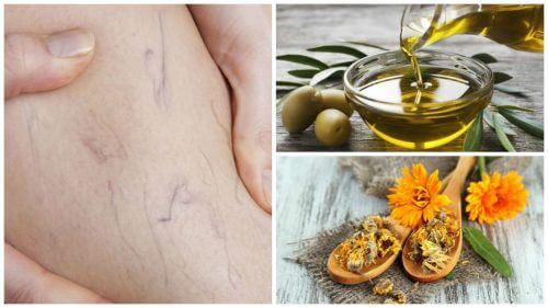 Get Rid of Varicose Veins With This Olive Oil and Marigold Treatment