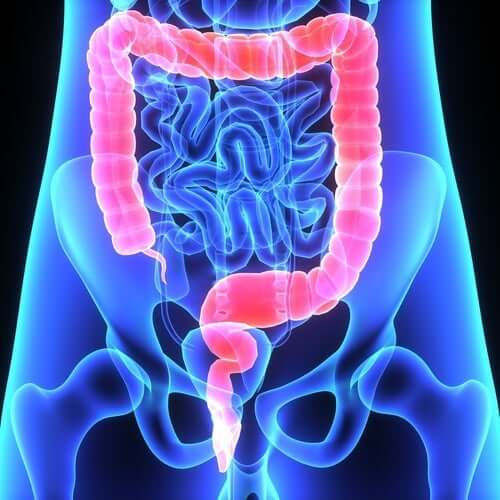 Irritable bowel syndrome - warning signs