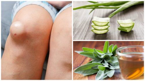 Natural Cures For Synovial Inflammation