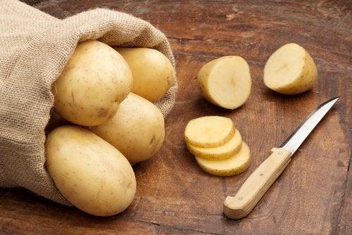 potato slices to treat dark circles under your eyes