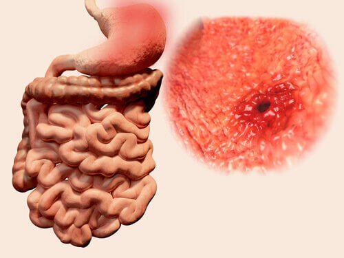 궤양과 기생충으로 인한 증상