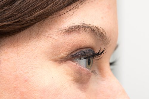 Why You Have Bags Under Your Eyes and How to Treat Them Naturally
