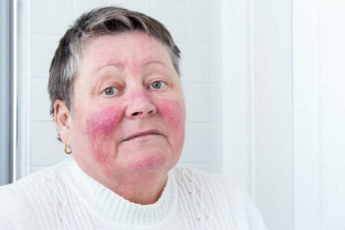A woman with rosacea.