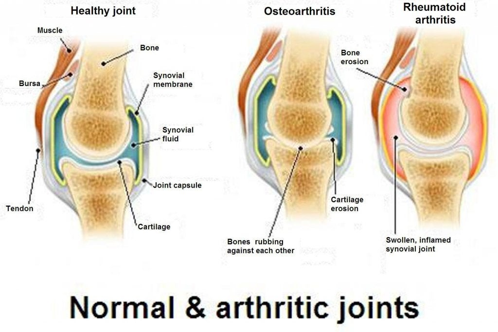 Osteoarthritis, Osteoporosis and Arthritis: What Are the Differences?