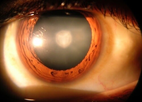 8 Things You Should Know About Cataracts