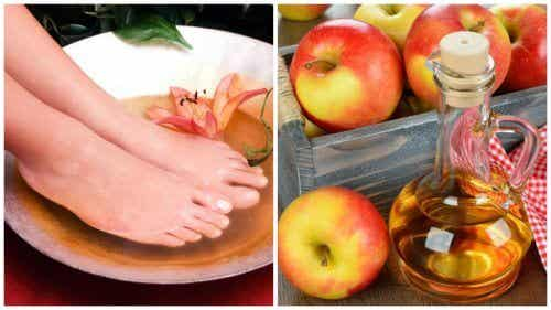 6 Benefits of Soaking Your Feet in Vinegar