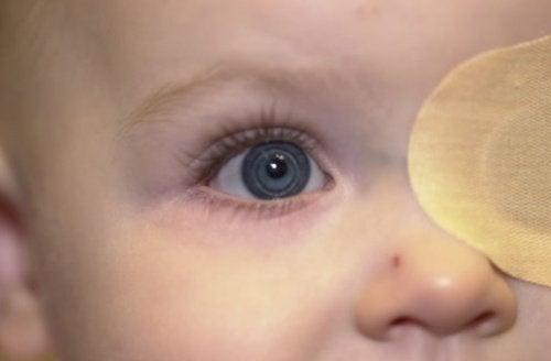 A baby eye