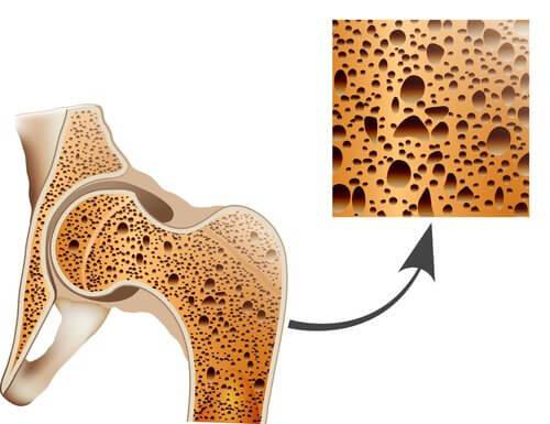 porous bone