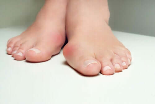 Seven Effective Ways to Relieve Bunion Pain