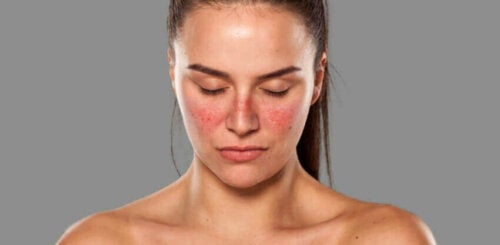 A woman with a rash on her face.