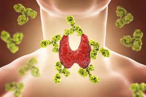 Six Things You Need to Know about Hashimoto's Thyroiditis