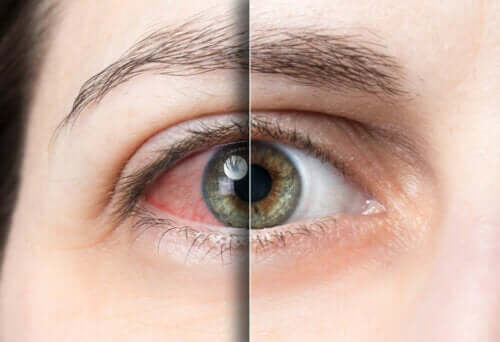 Everything You Need to Know About a Detached Retina