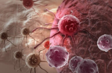 immunotherapy for cancerous cells