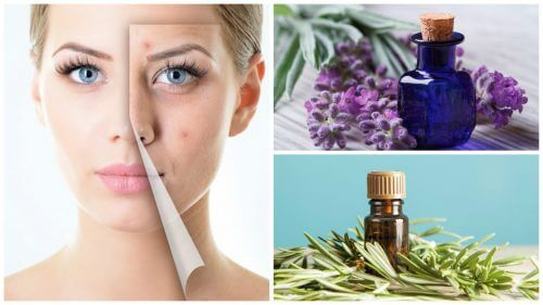 How to Clear Acne with Essential Oils