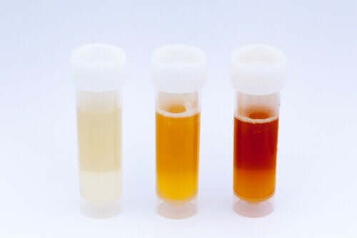What the Color of Urine Says About Your Health