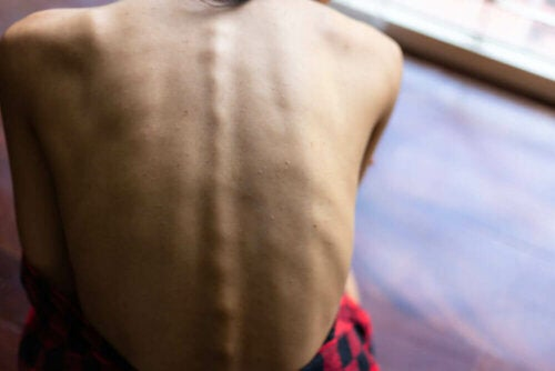 the back of a person with nutritional deficiency