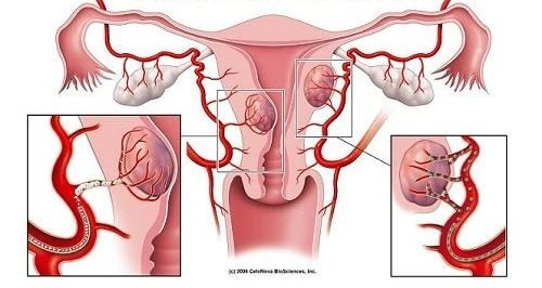 7 Warning Signs of Fibroids