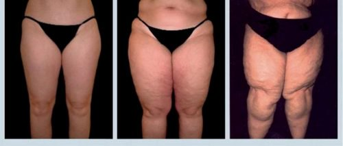 Lipedema, a Serious Disease You Should Know About
