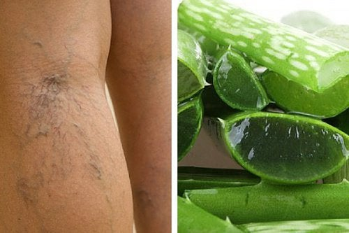 Increase blood flow to your legs with aloe vera.