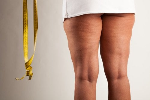 Lipedema is not the same as cellulite