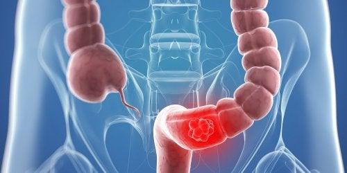 9 Remedies that May Help Colon Cancer Symptoms