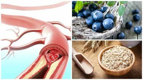 9 Foods that Can Improve Your Arterial Health