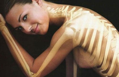 weak bones