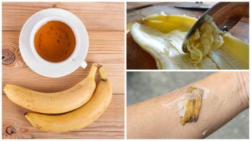 5 Ways to Use Banana Peel as a Natural Remedy