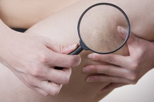 Woman grabbing cellulite looking with magnifying glass